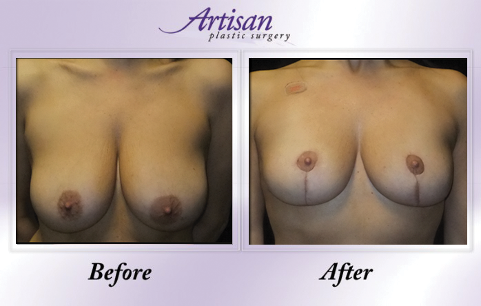 Artisan Breast Lift Front 1
