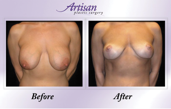 Artisan Breast Lift Front 2