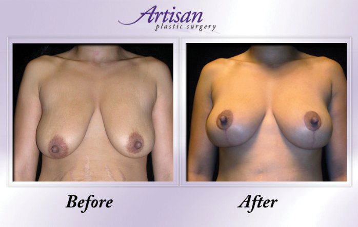 Artisan Breast Lift Front 3