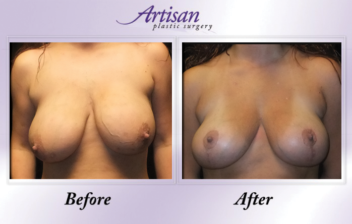 Artisan Breast Lift Front 4