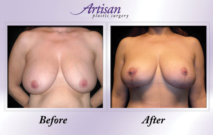Artisan Breast Lift Front 5