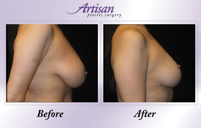 Artisan Breast Lift Side 1