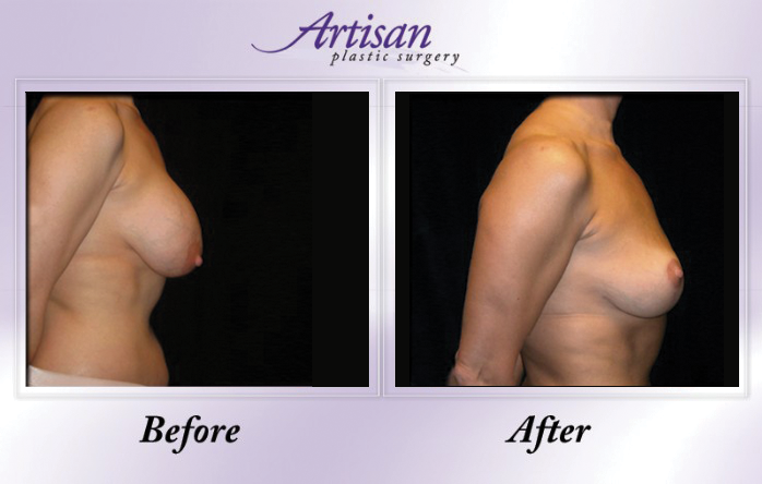 Artisan Breast Lift Side 2