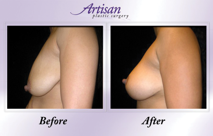 Artisan Breast Lift Side 3