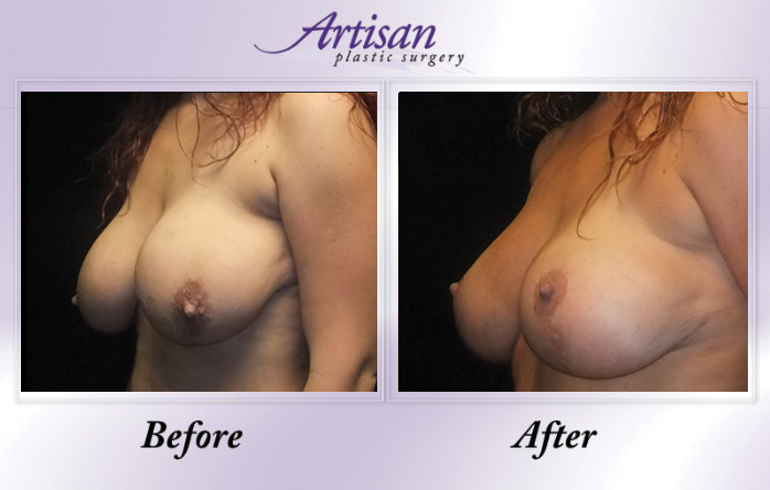 Artisan Breast Lift Side 4