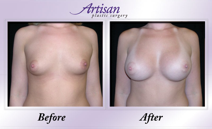 Breast Aug 1 Front