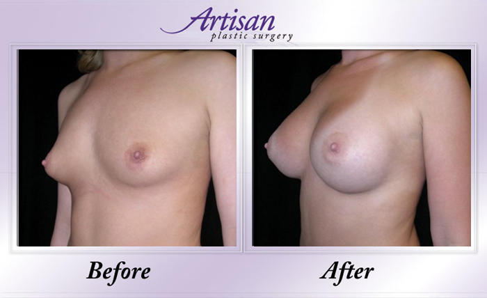 Breast Aug 1 Side