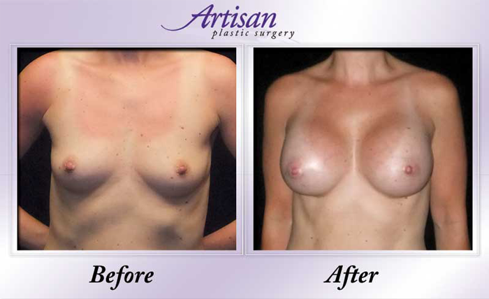 Breast Aug 10 Front