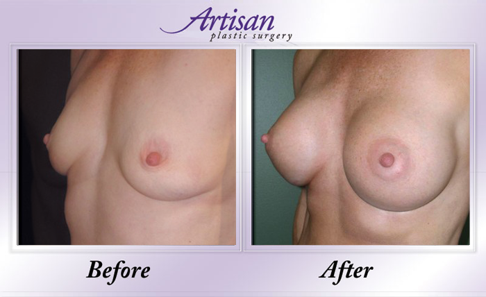 Breast Aug 2 Side