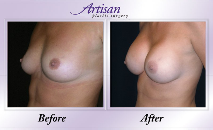 Breast Aug 3 Side