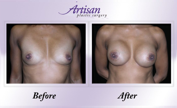 Breast Aug 4 Front