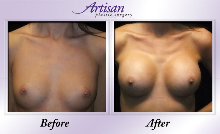 Breast Aug 7a Front