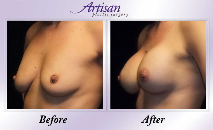 Breast Aug 5 Side