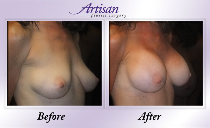 Breast Aug 6 Side