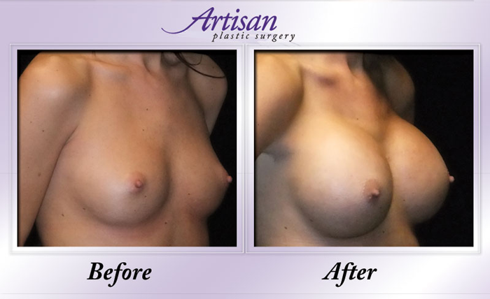 Breast Aug 7 Side