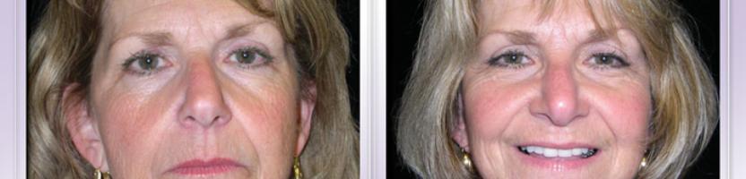 Facial Lift