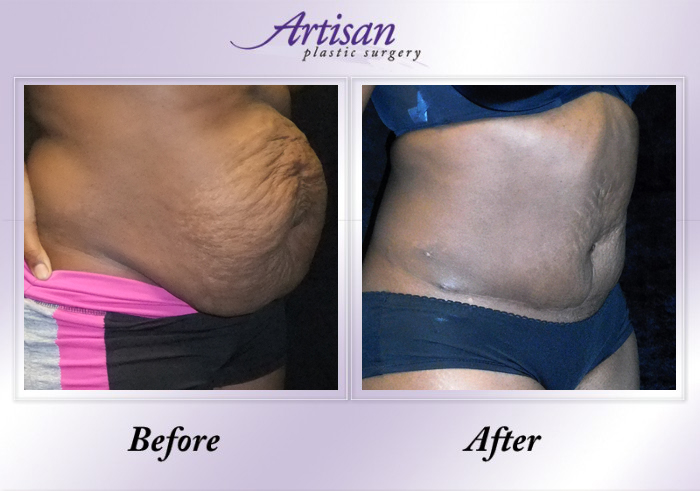 12 Side Artisan Abdominoplasty 10-18-18